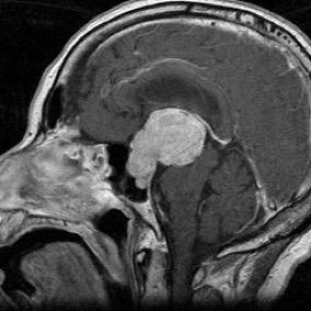 下垂体腫瘍